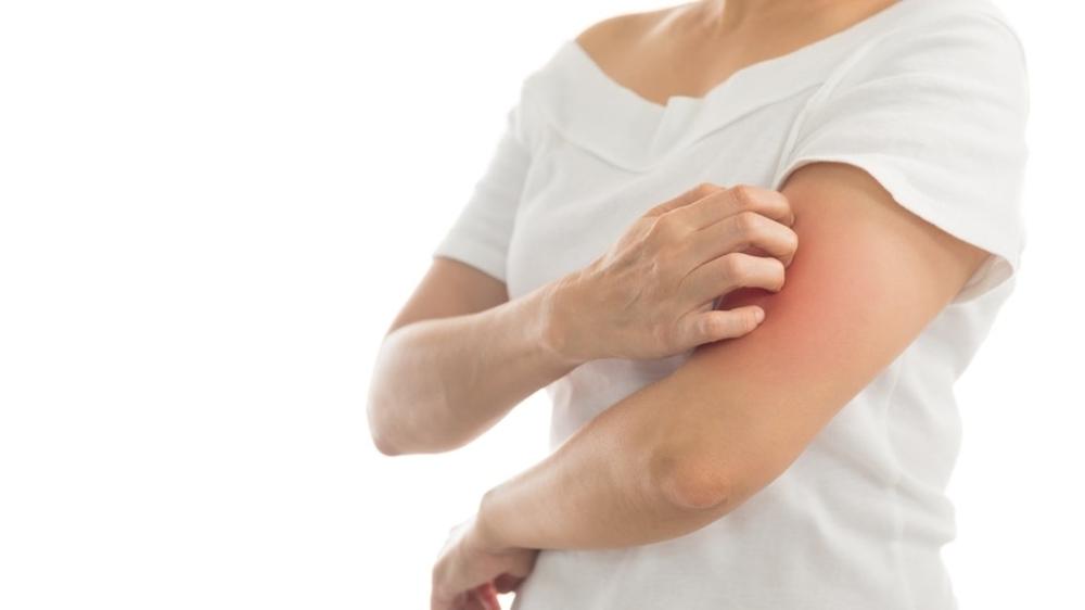 Kenali 10 Penyakit Kulit dan Cara Pencegahannya