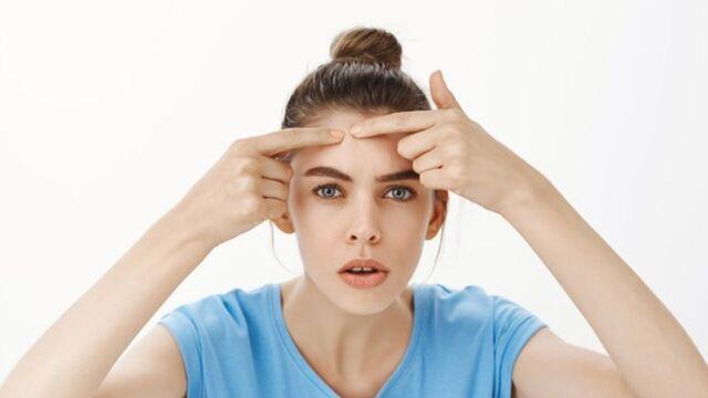 Inilah Cara Ampuh Untuk Menghilangkan Bekas Jerawat di Wajah