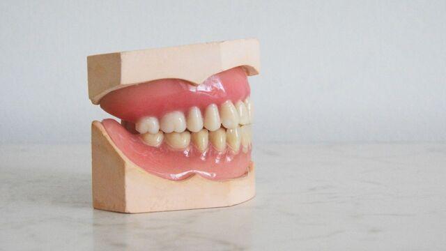 Penyebab Karang Gigi Paling Umum Terjadi