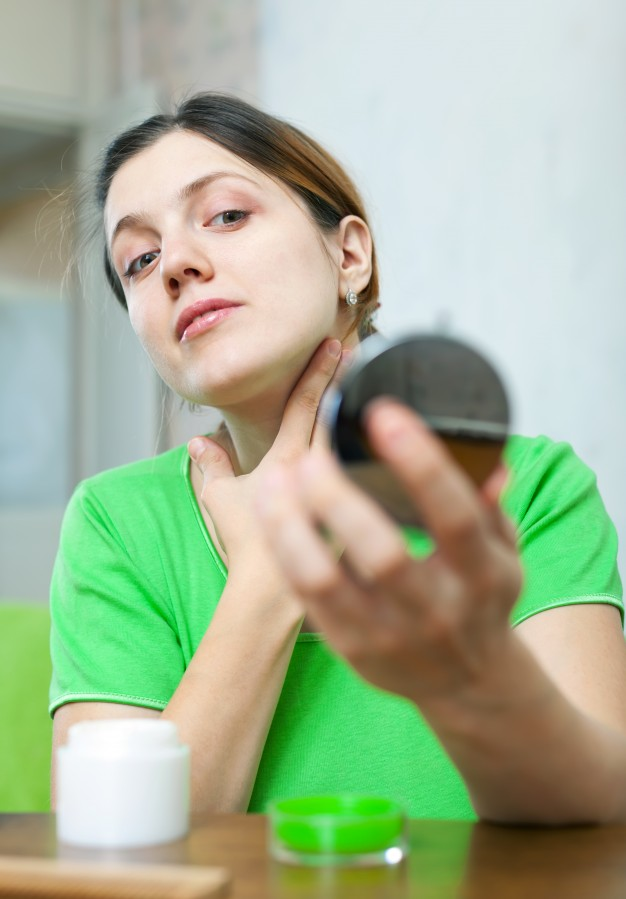 Yang Harus Diperhatikan Pasien Lupus Agar Hidup Normal