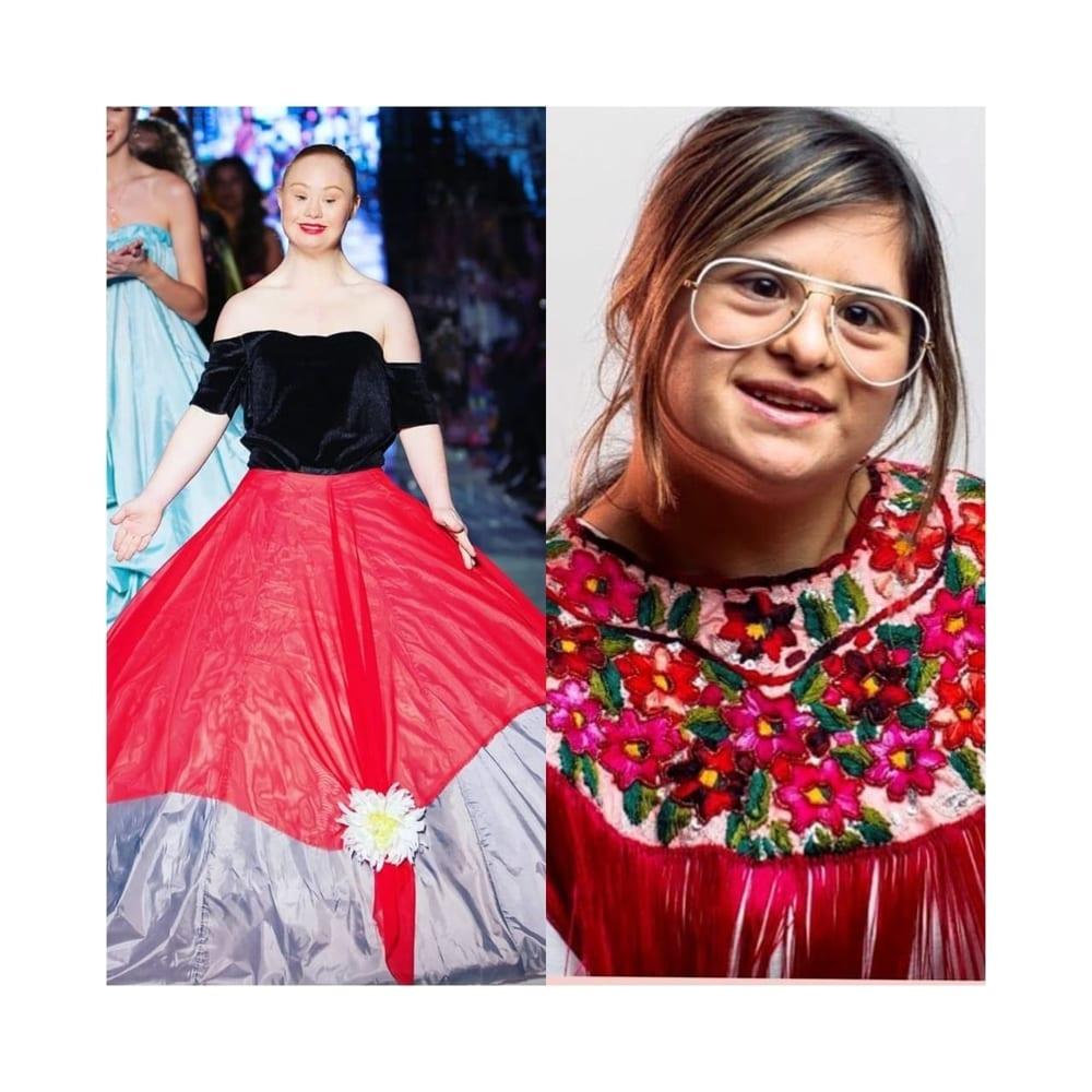 5 Tokoh Perempuan Inspiratif Dengan 'Down Syndrome'