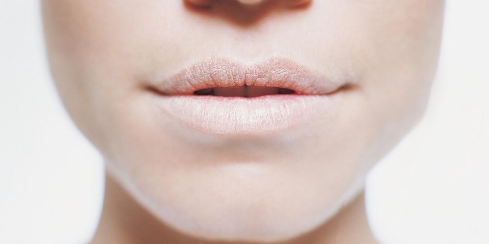 Trik Mudah Atasi Bibir Pecah-pecah