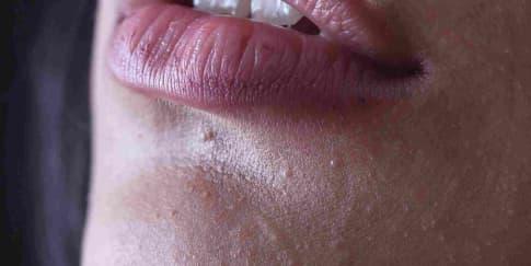 Atasi Bibir Menghitam Dengan 7 Bahan Alami Ini