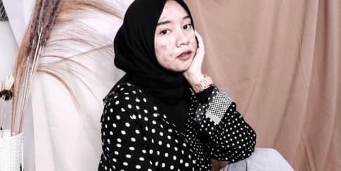 Pede Berjerawat, Novia Nur Ismi Jadi Beauty Influencer Viral