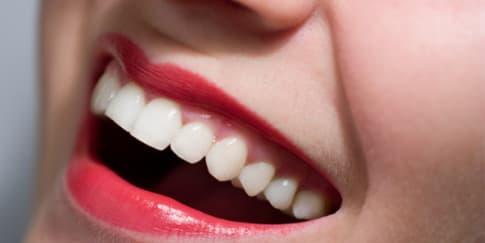 Perawatan Gigi Putih untuk Senyum yang Memikat