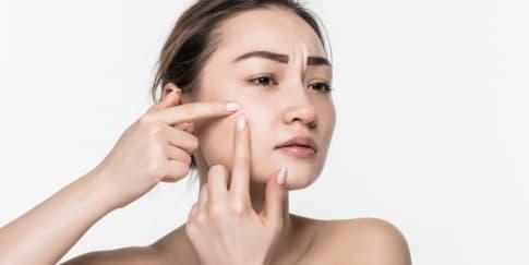 3 Tips Mencegah Jerawat Muncul Saat Pakai Masker Seharian