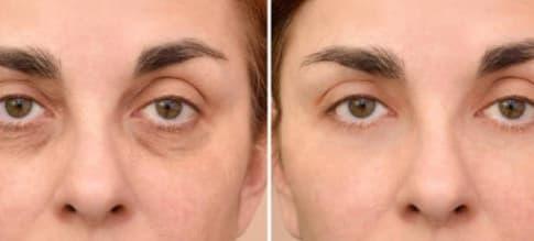 Cara Mengurangi Kantong Mata Akibat Kelelahan