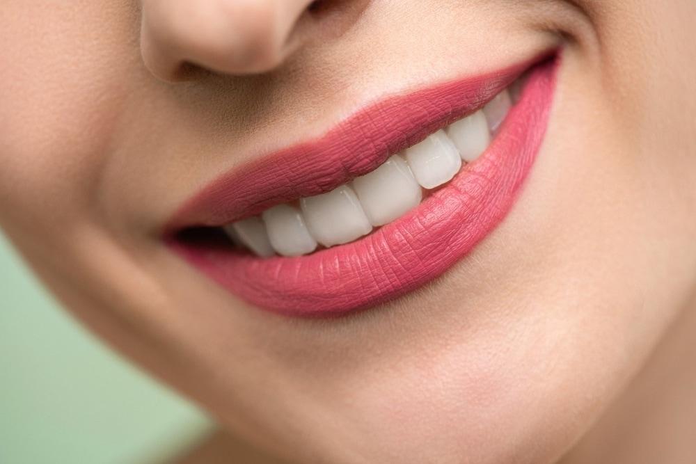 10 Kebiasaan Yang Bisa Buat Gigi Kuning Dan Rusak
