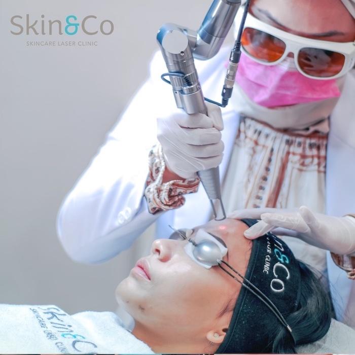 Rekomendasi Klinik Untuk Melakukan Perawatan Laser Wajah